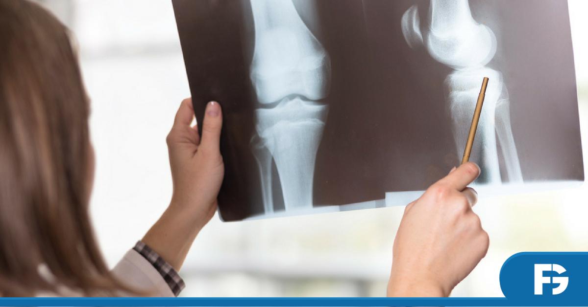 reumatologia-artrite-reumatoide-pos-graduacao