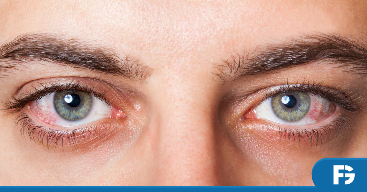 alergia-olho-oftalmologia