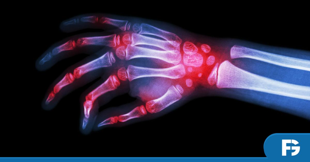 Novas-Diretrizes-Tratamento-Artrite-Reumatoide-Sociedade-Brasileira-Reumatologia