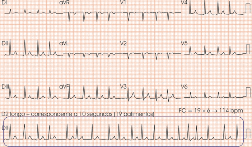 ecg-ritmo-cardiaco-irregular-definir-frequencia