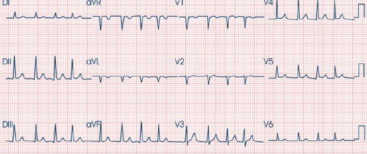 como-definir-frequencia-cardiaca-pelo-ecg-quando-o-ritmo-cardiaco-e-irregular-fc-irregular